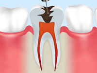 虫歯の状態確認