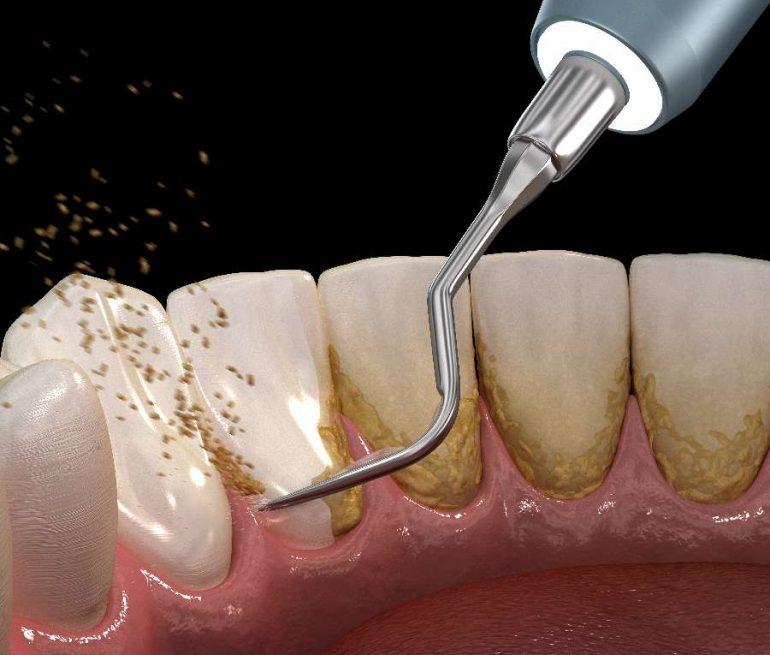 歯科医院での歯周治療