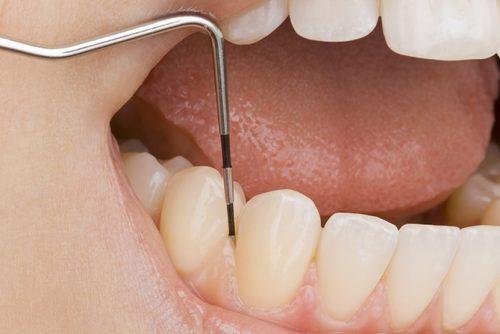 歯周ポケット検査と虫歯チェック