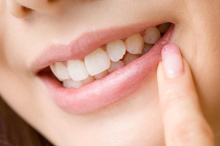 根管内の徹底的な無菌化が抜歯回避につながる
